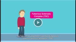 Video TSC